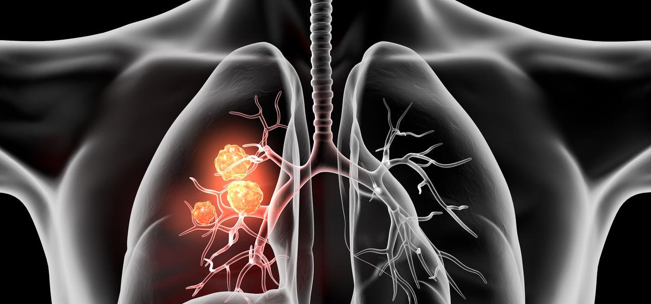 Lungenkrebs rückenschmerzen